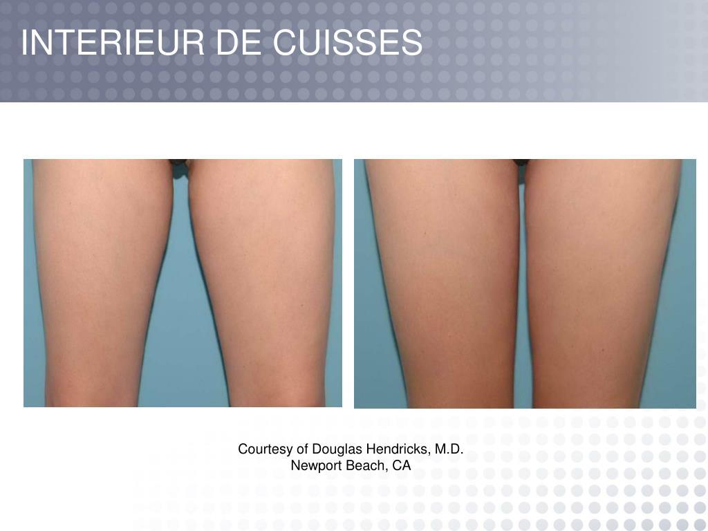 INTERIEUR DE CUISSES