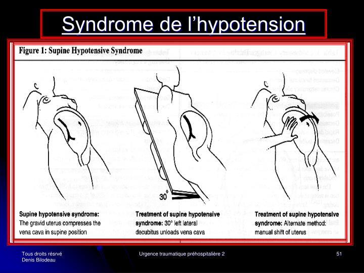 Syndrome de l'hypotension