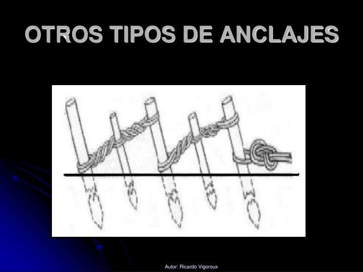 OTROS TIPOS DE ANCLAJES