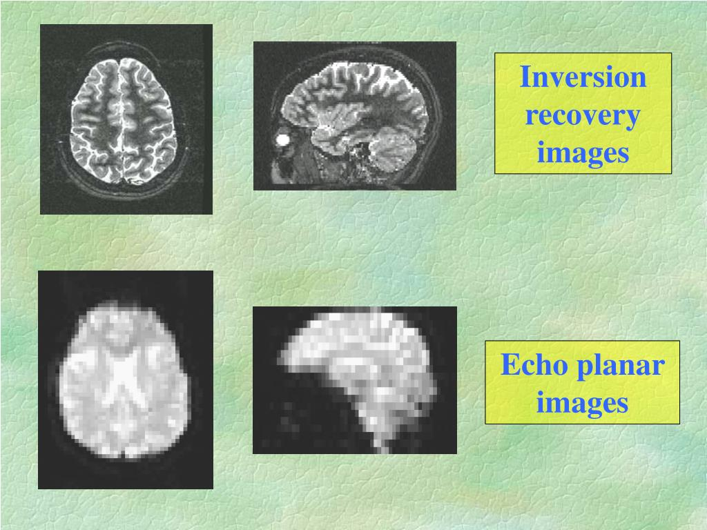 Inversion recovery images