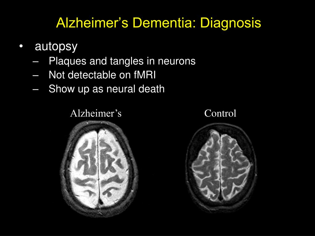 dementia cerebrum and service user Show more related documents: informative: cerebrum and mild alzheimer essay around 465,000 people in the uk suffer from it, making it the most common form to dementia alzheimer's affects the cerebrum in the brain how it affects the memory 0 when a service user suffers from alzheimer's.