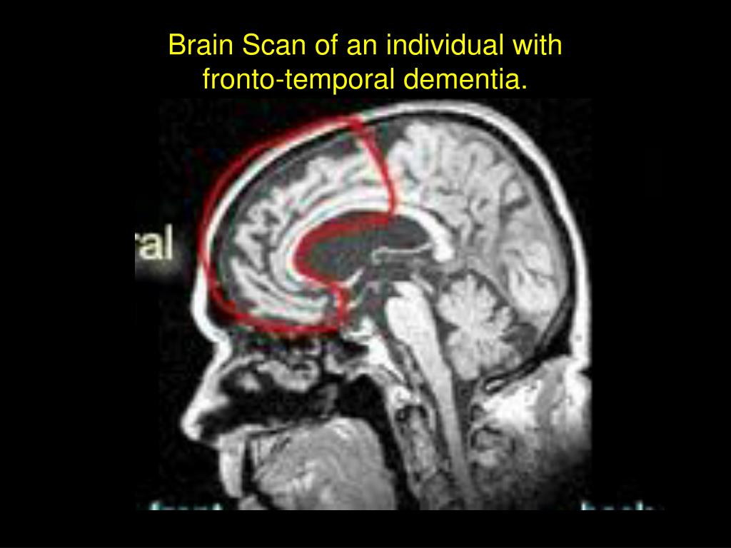 Brain Scan of an individual with