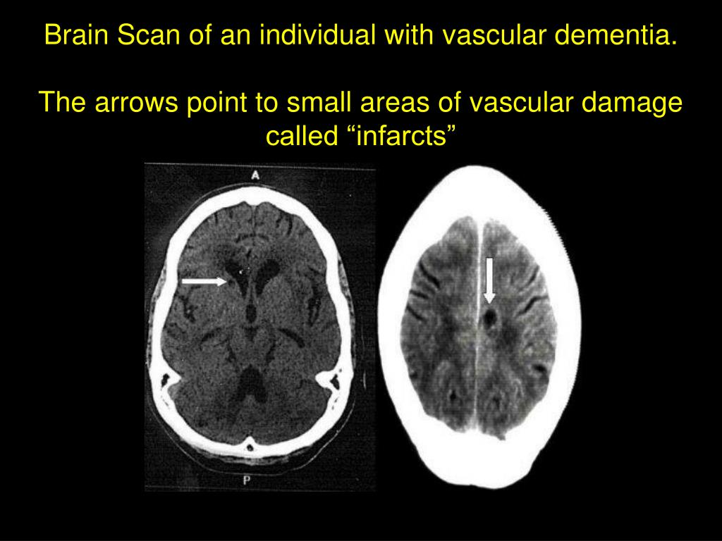Brain Scan of an individual with vascular dementia.