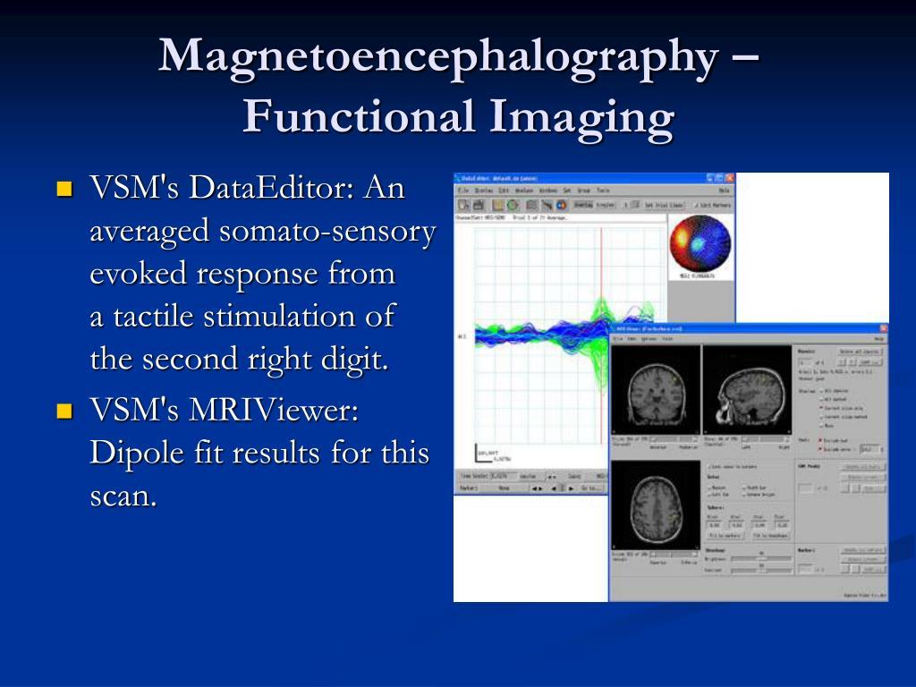 Magnetoencephalography – Functional Imaging