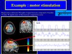 example motor stimulation