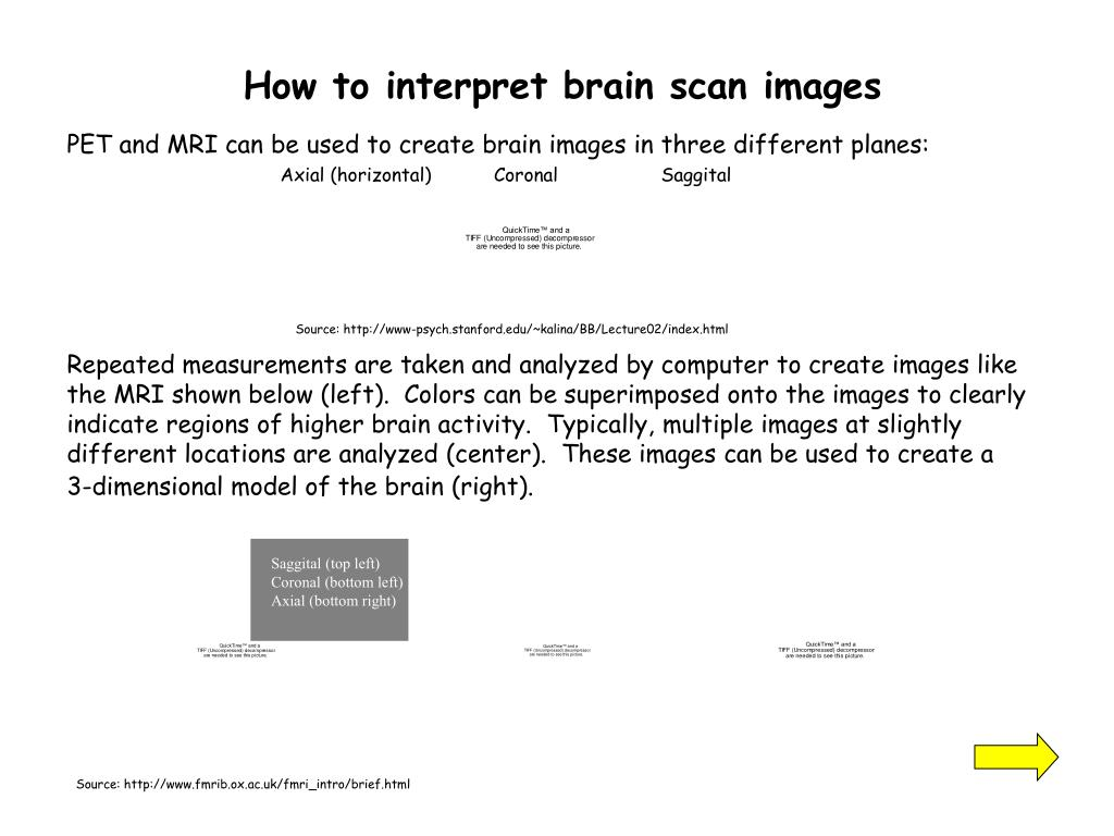 How to interpret brain scan images