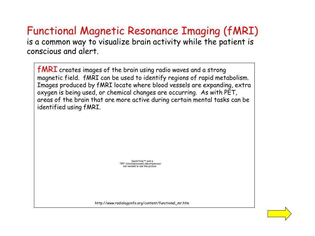 Functional Magnetic Resonance Imaging (fMRI)