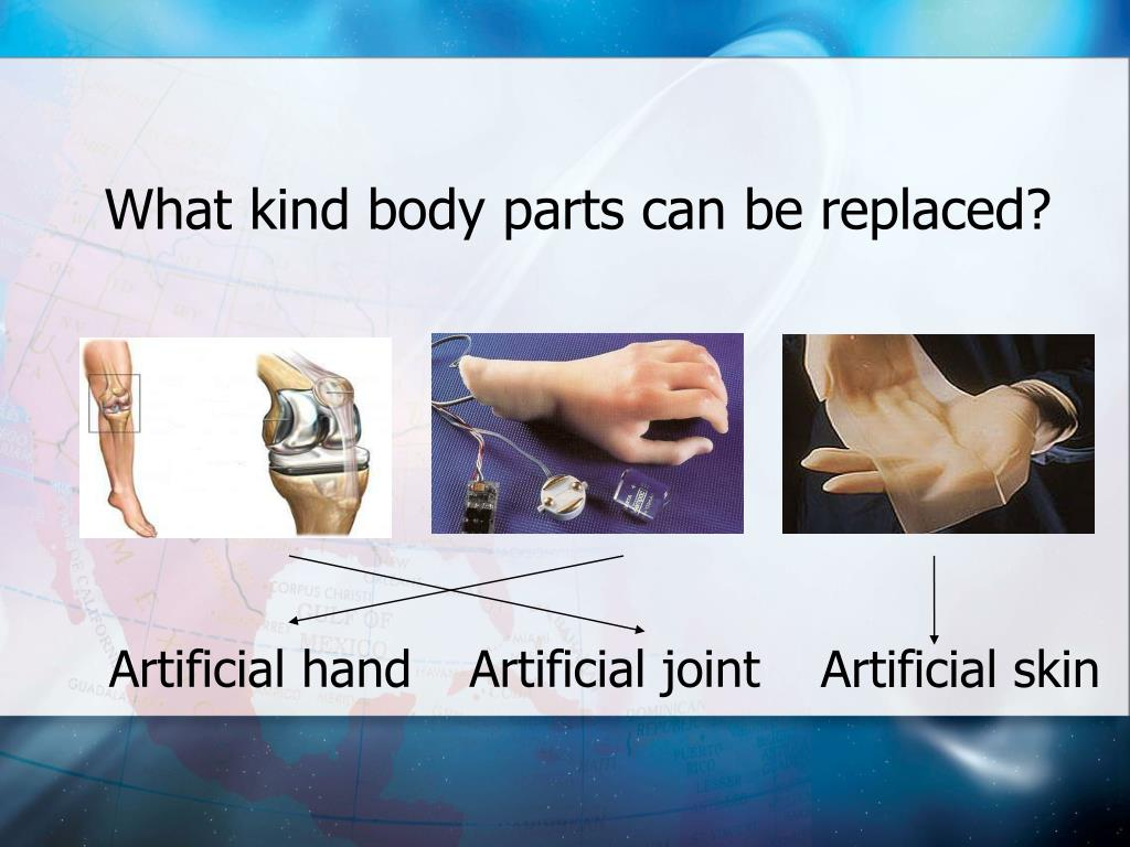 What kind body parts can be replaced?