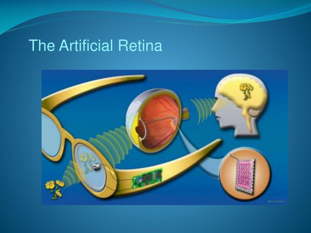 The Artificial Retina