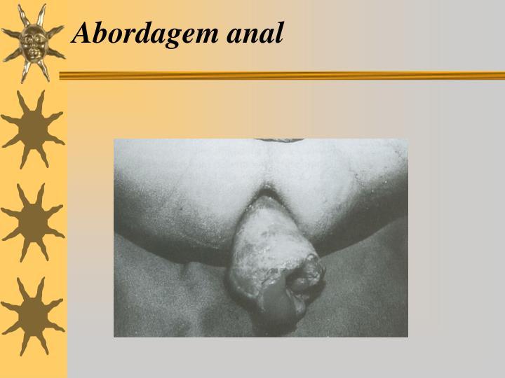 Abordagem anal