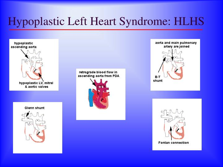 Hypoplastic Left Heart Syndrome: HLHS