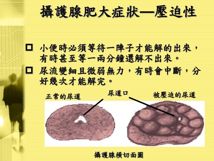 攝護腺肥大症狀
