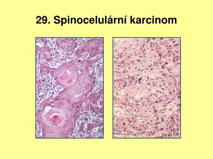 29. Spinocelulární karcinom