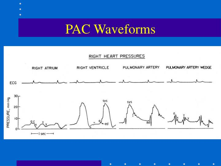 ppt - hemodynamic monitoring powerpoint presentation