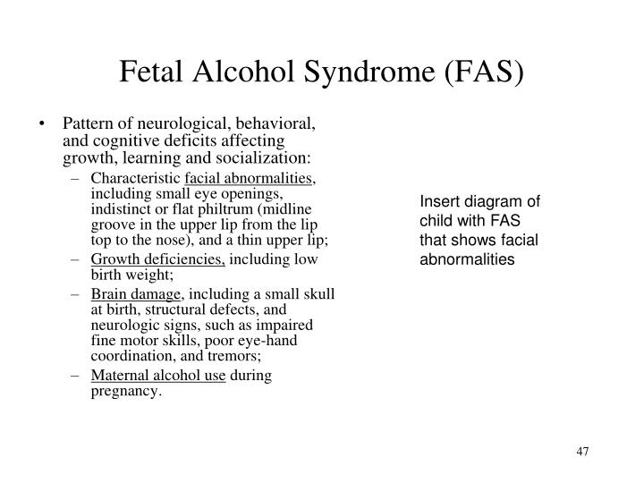 Fetal Alcohol Syndrome (FAS)