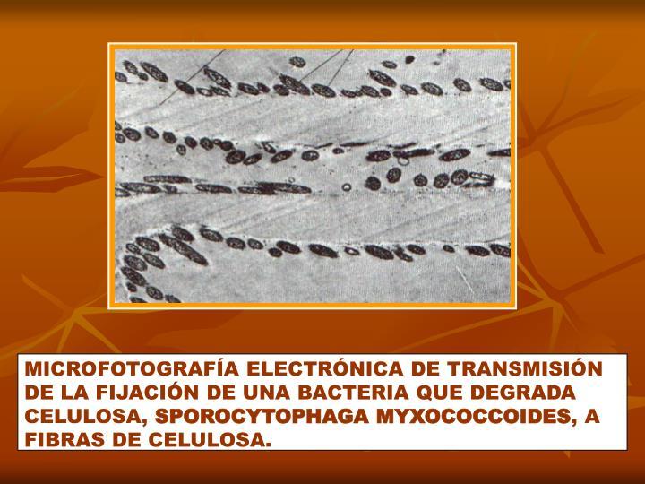 MICROFOTOGRAFÍA ELECTRÓNICA DE TRANSMISIÓN DE LA FIJACIÓN DE UNA BACTERIA QUE DEGRADA CELULOSA,