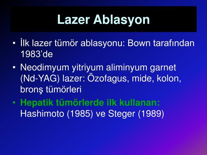 Lazer Ablasyon