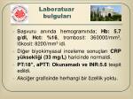 laboratuar bulgular