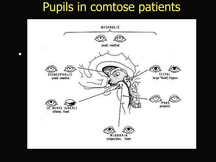 Pupils in comtose patients