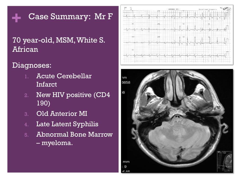 Case Summary:  Mr F