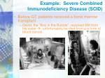 example severe combined immunodeficiency disease scid