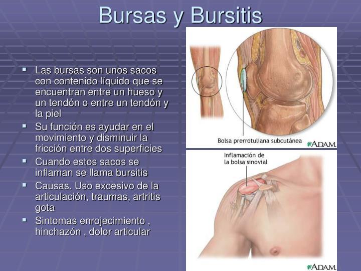 Bursas y Bursitis