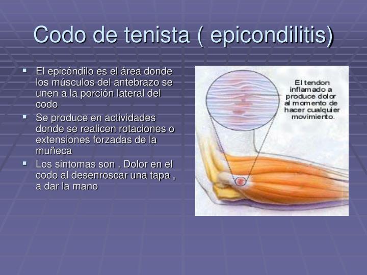 Codo de tenista ( epicondilitis)