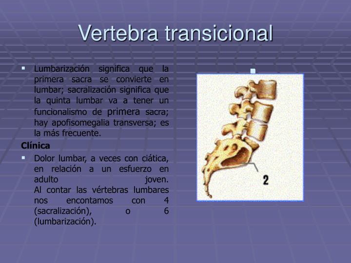 Lumbarización significa que la primera sacra se convierte en lumbar; sacralización significa que la quinta lumbar va a tener un funcionalismo de
