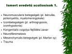 ismert eredet scoliosisok 1