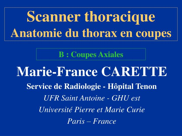 scanner thoracique anatomie du thorax en coupes n.