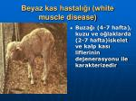 beyaz kas hastal white muscle disease