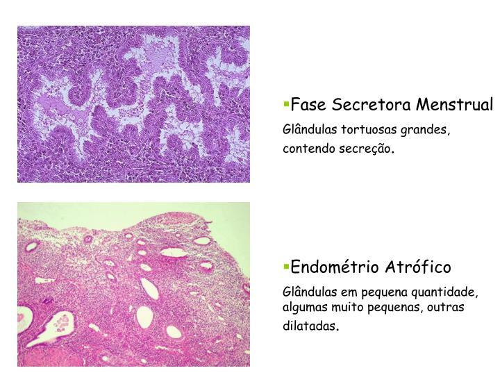 Fase Secretora Menstrual