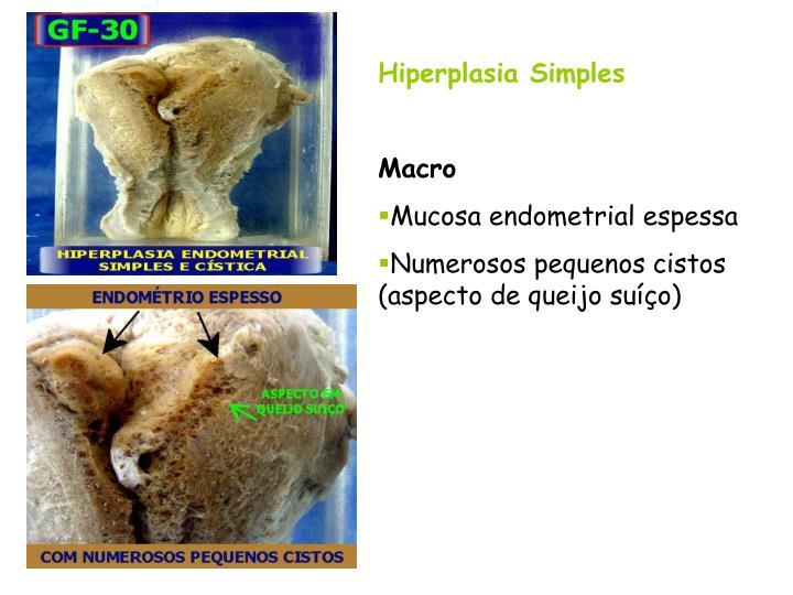 Hiperplasia Simples