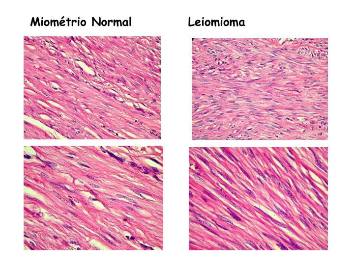 Miométrio Normal           Leiomioma