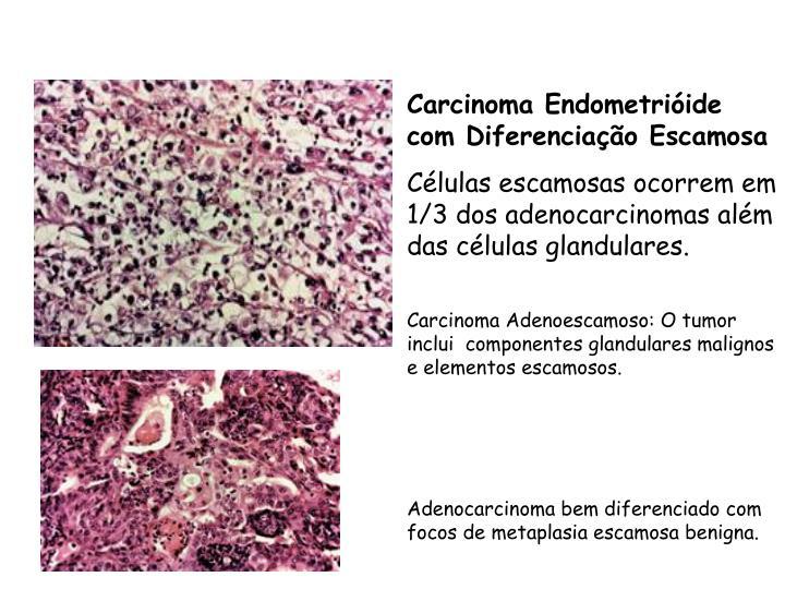 Carcinoma Endometrióide com Diferenciação Escamosa