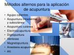 m todos alternos para la aplicaci n de acupuntura