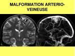 malformation arterio veineuse