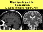 rep rage du plan de l hippocampe coupes frontales perpen axe