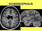 schizencephalie