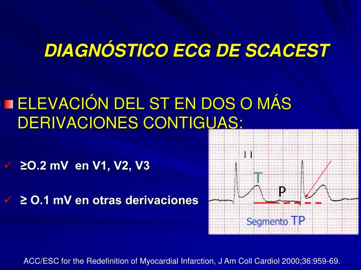 DIAGNÓSTICO ECG DE SCACEST