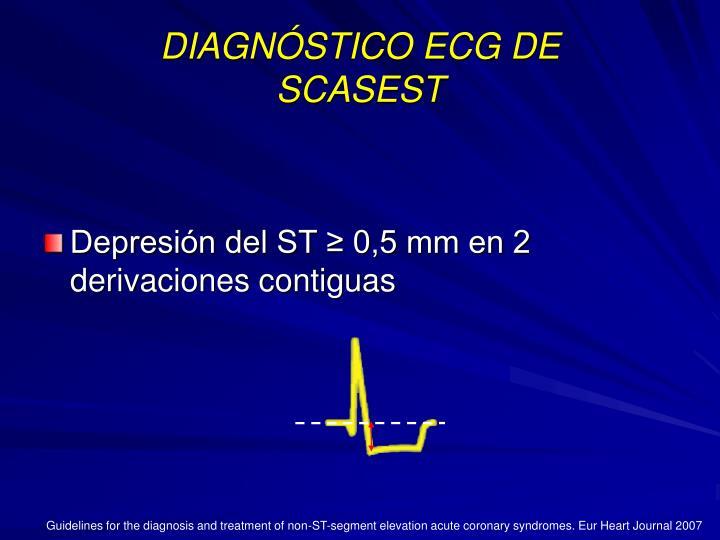 DIAGNÓSTICO ECG DE