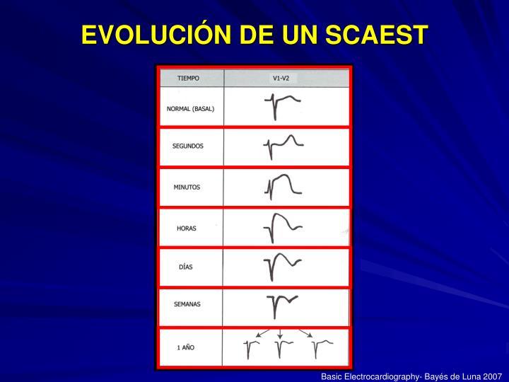 EVOLUCIÓN DE UN SCAEST