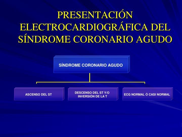 PRESENTACIÓN ELECTROCARDIOGRÁFICA DEL SÍNDROME CORONARIO AGUDO