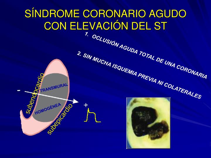 SÍNDROME CORONARIO AGUDO CON ELEVACIÓN DEL ST