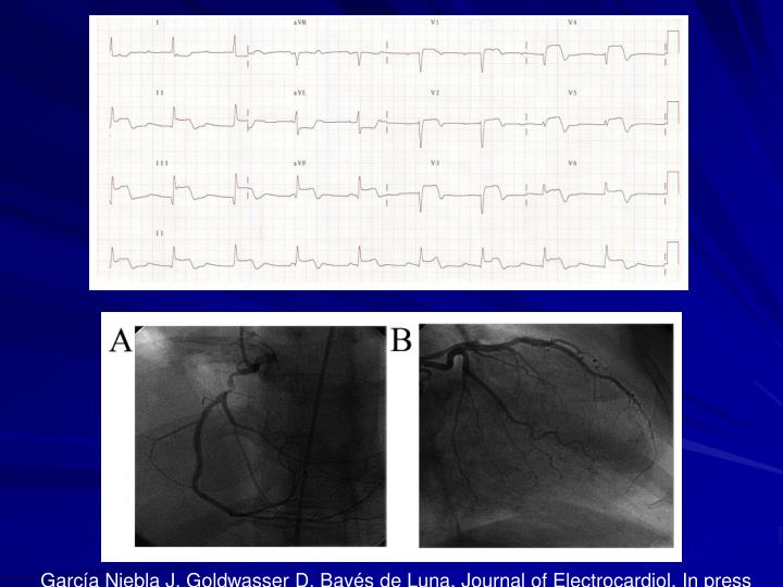 García Niebla J, Goldwasser D, Bayés de Luna. Journal of Electrocardiol. In press