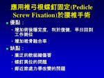 pedicle screw fixation