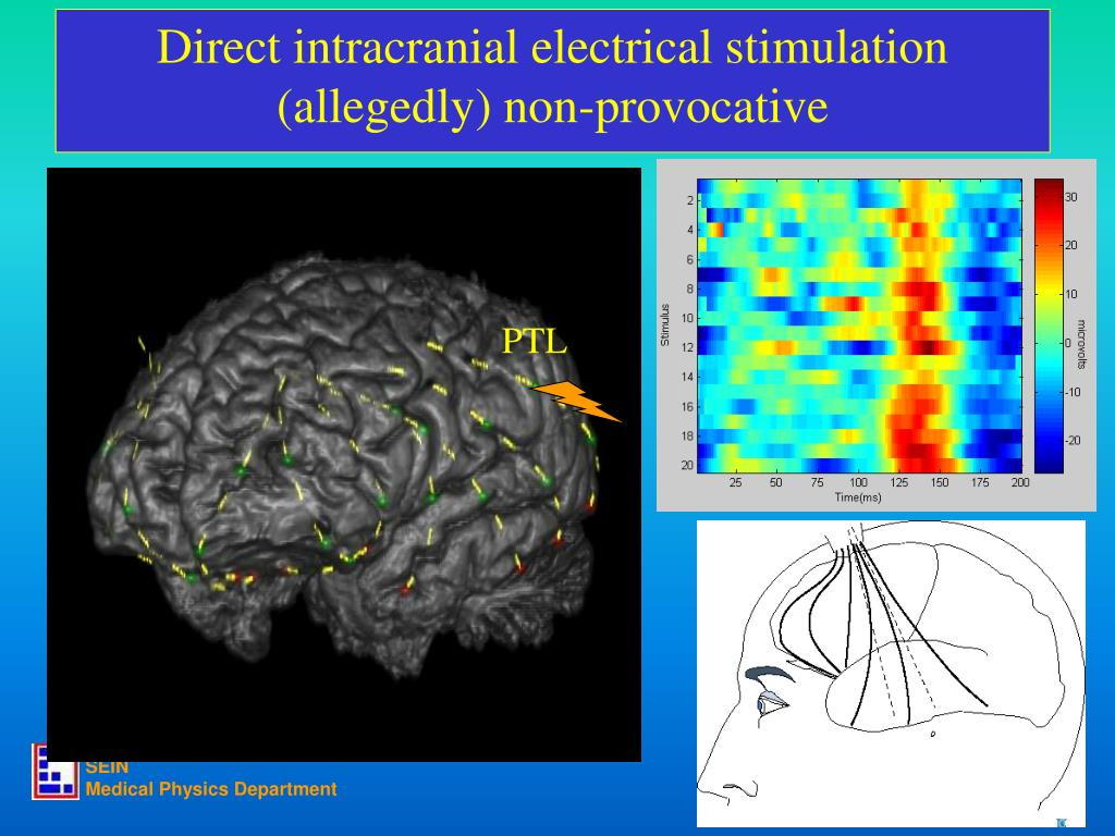 Direct intracranial electrical stimulation
