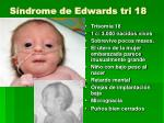 s ndrome de edwards tri 18