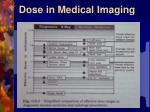 dose in medical imaging