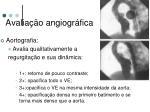avalia o angiogr fica1